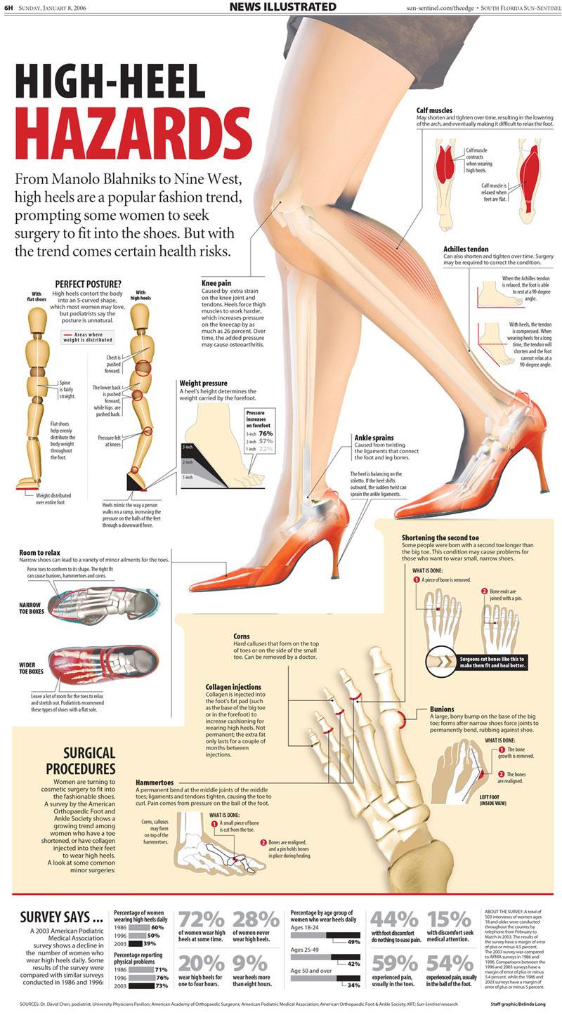 High-Heel Hazards Infographic